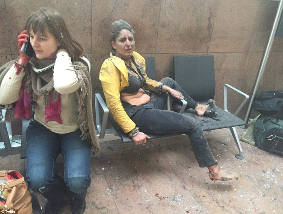 Injured passengers are covered in blood and dust after the explosions in the terminal building